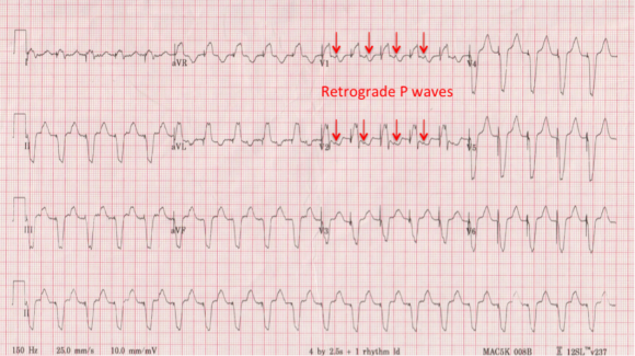 EKG-with-arrows
