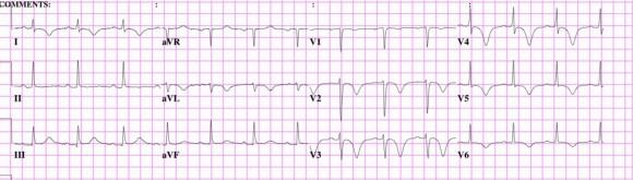 EKG12-1024x292