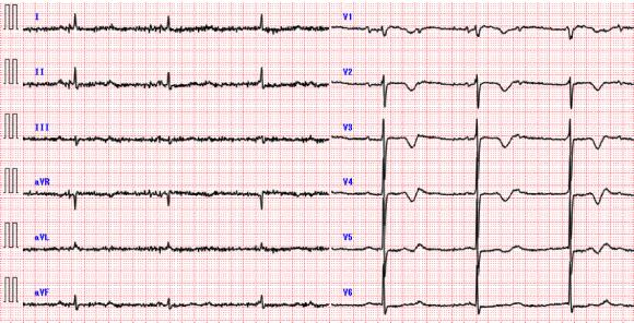 EKG1303ans3