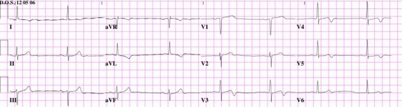 EKG2-1024x273