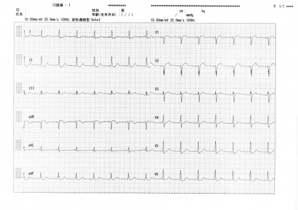 Ischemic-ECG-1-1