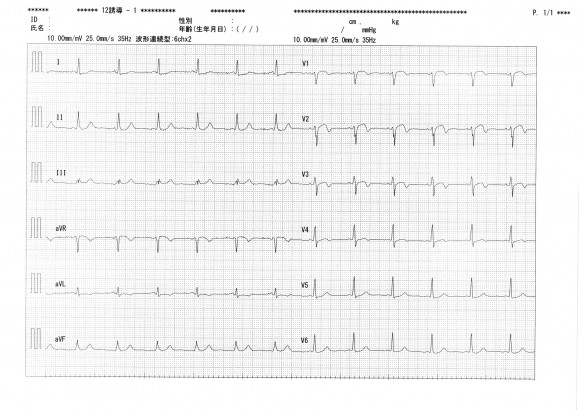 Ischemic-ECG-1-2