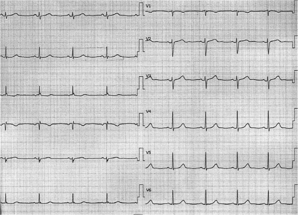 [解説] 心電図27:7月心電図 59歳男性 – 下痢、食欲不振。