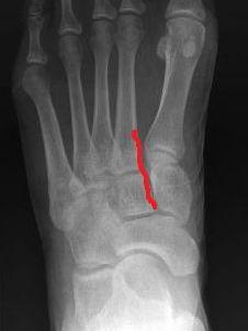 foot-2toe