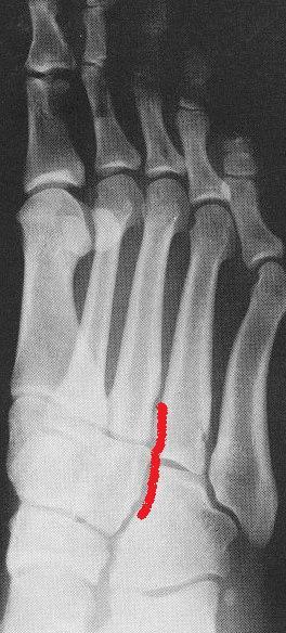 foot-4toe4