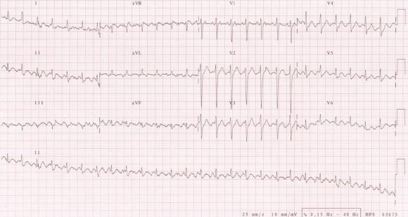 Multifocal-atrial-tachycardia
